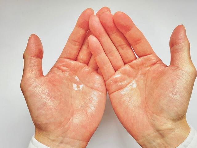 両手についたバルクオムの化粧水