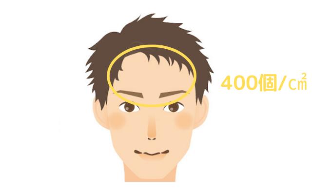 顔(前額部)における皮脂腺量