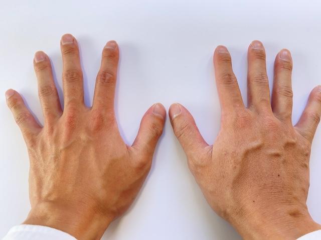 乾燥した手の甲の比較画像