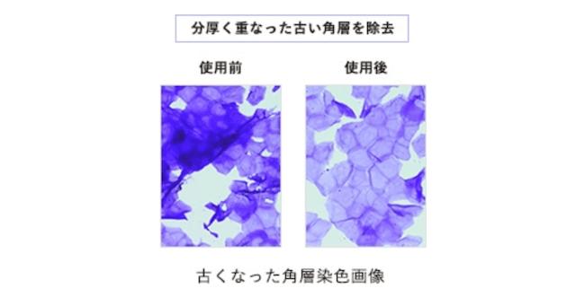 オルビスユードットの洗顔料「ウォッシュ」使用前後の角層染色画像
