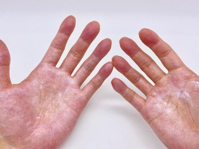 日焼け止めで汚れた両手